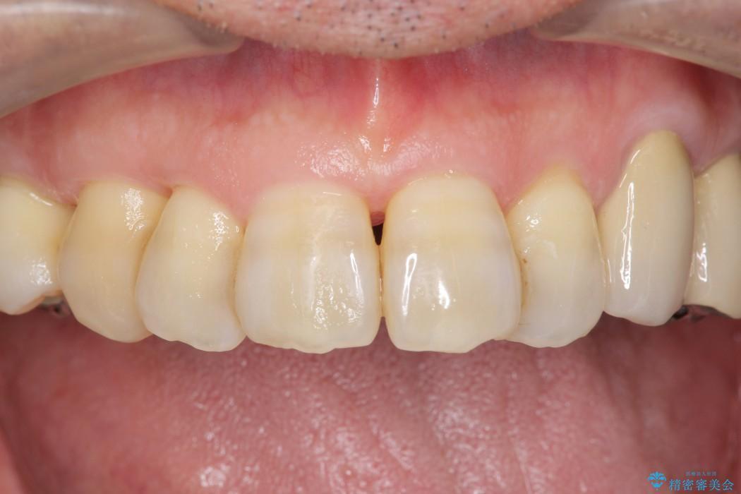エムドゲインを用いた中等度歯周病治療 治療後画像