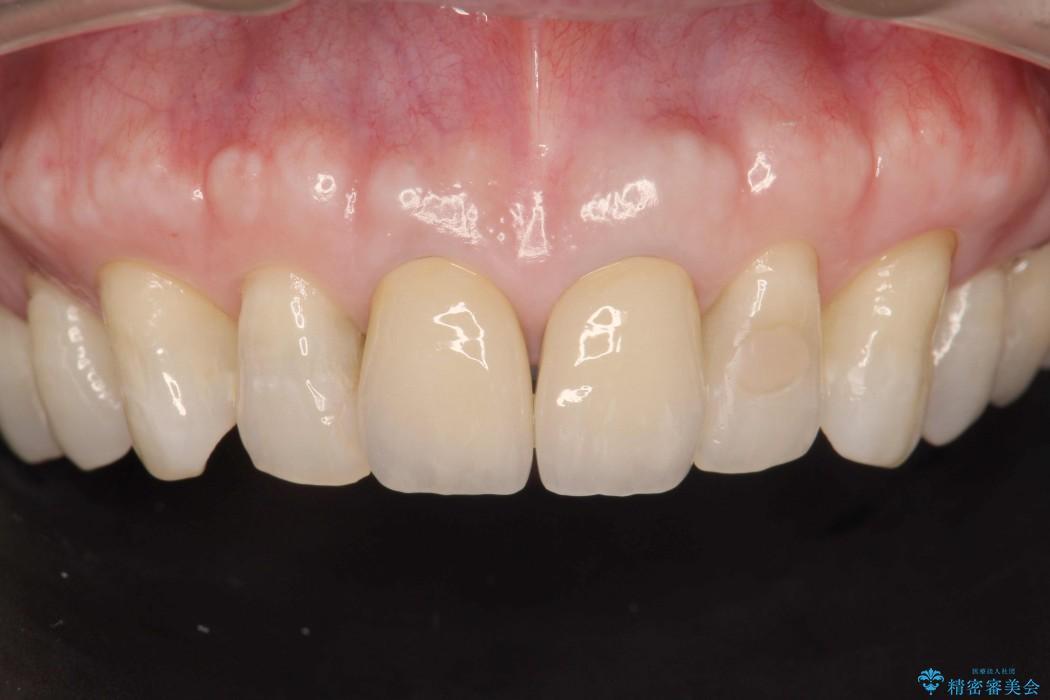 感染根管治療を伴った前歯のセラミック治療 アフター