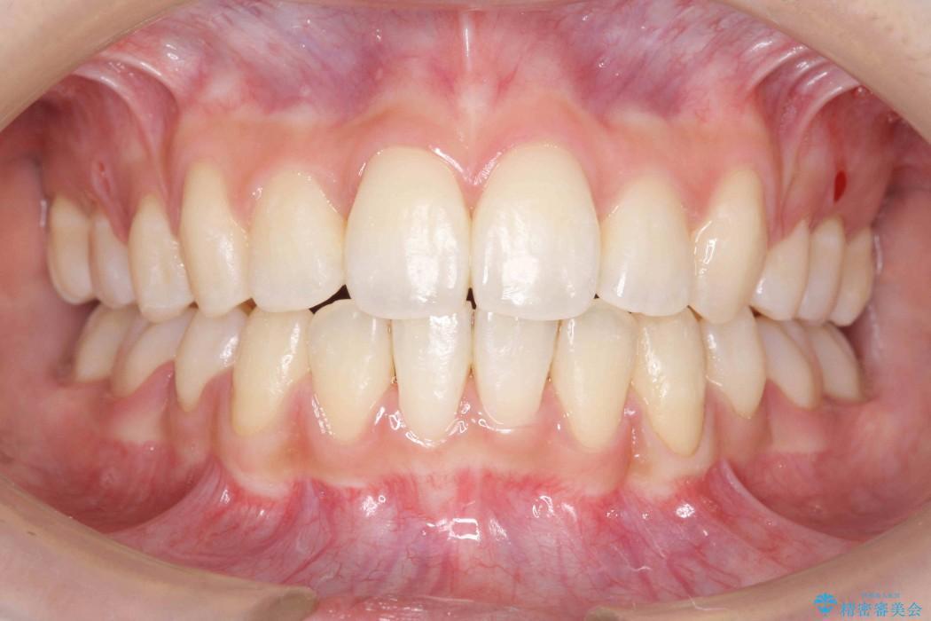 根の短い歯を抜歯 がたがたの歯並び矯正 アフター