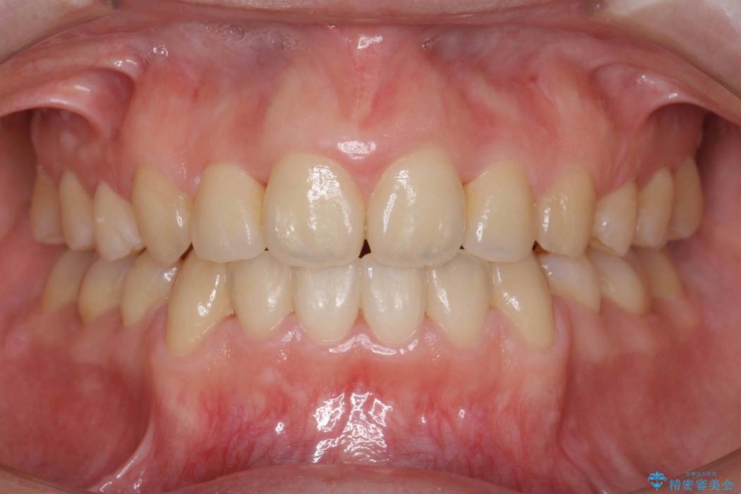 前歯のねじれと出っ歯の矯正 アフター