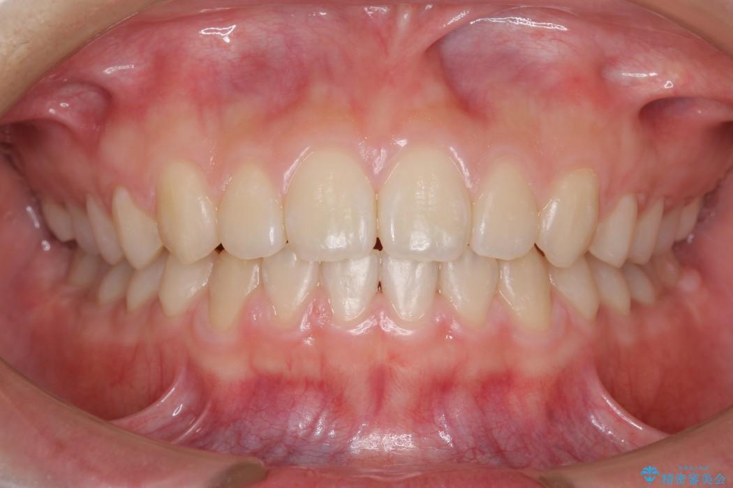 前歯のすき間と過蓋咬合のワイヤー矯正 治療後画像