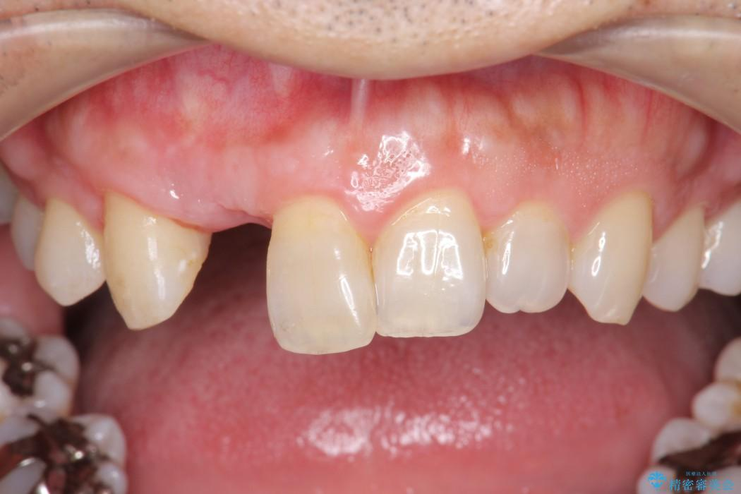 前歯のインプラント治療(インプラント埋入まで) アフター