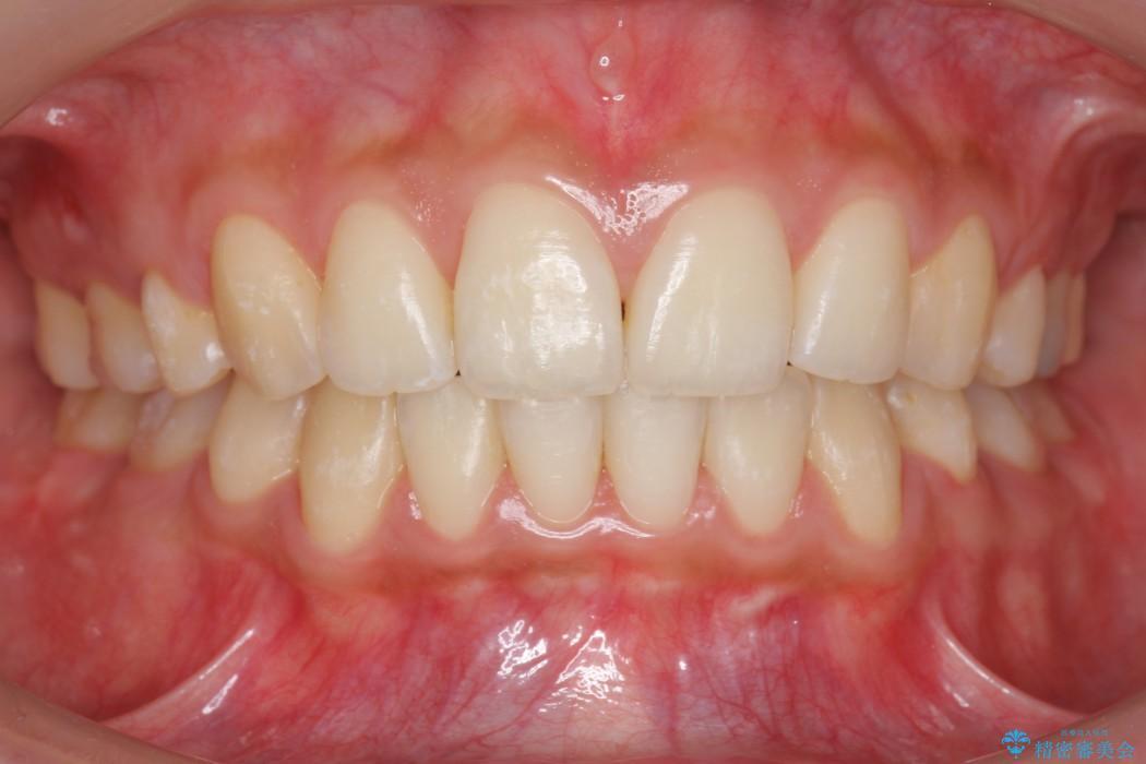 他院で治療した出っ歯の再矯正 アフター