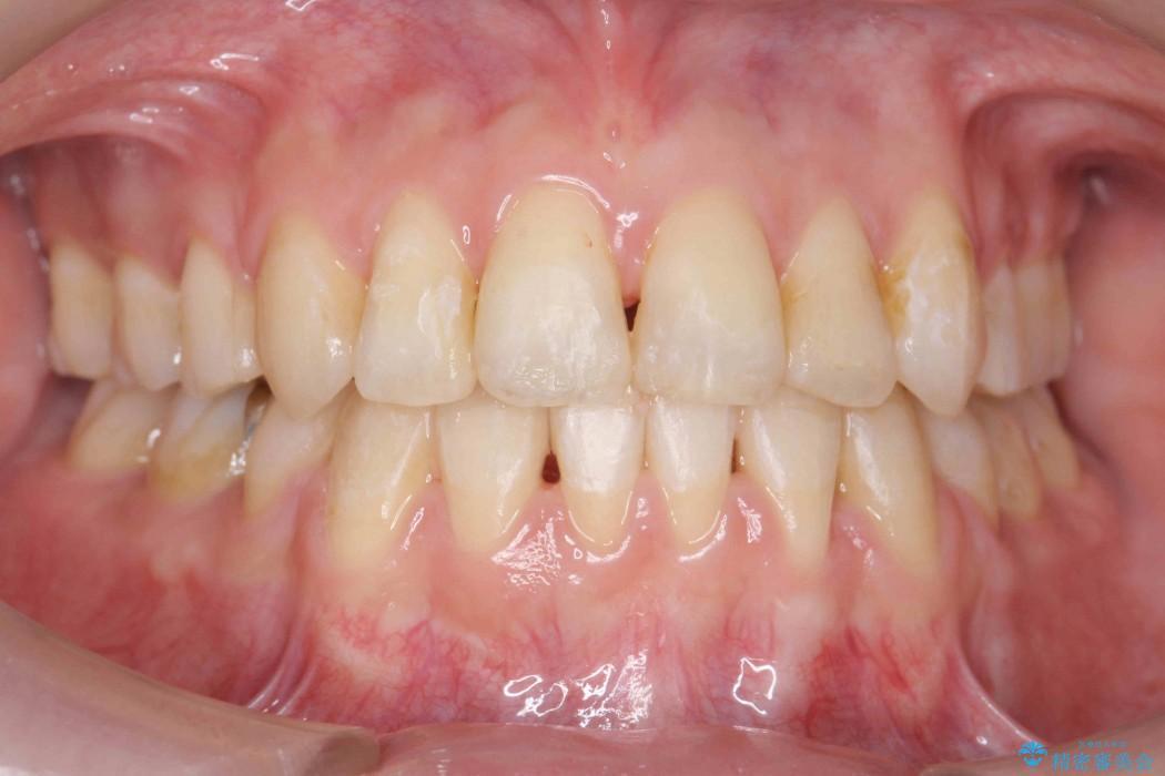 反対咬合(奥歯)のワイヤー矯正治療 アフター