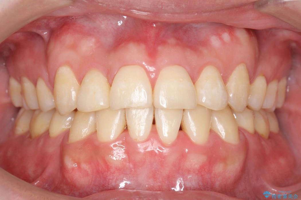 前歯のガタガタと奥歯の噛み合わせの矯正 アフター