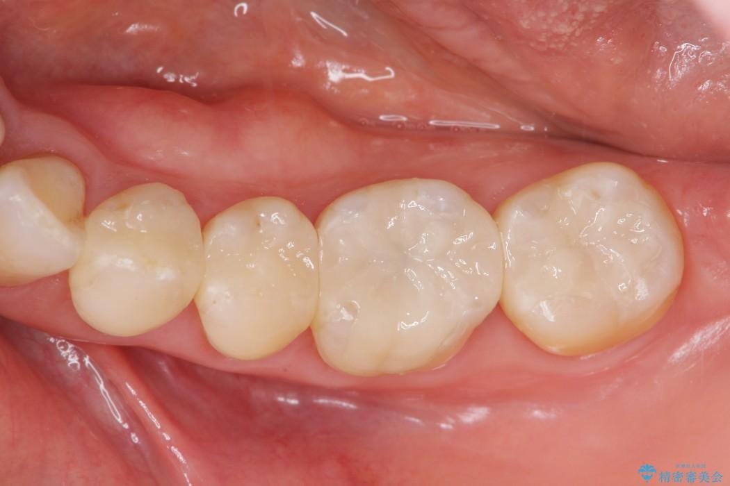 銀歯を白くするセラミックインレー アフター
