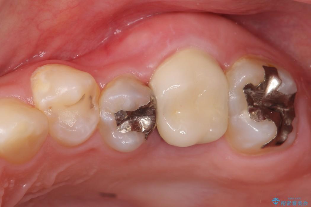 奥歯の親知らず移植 アフター