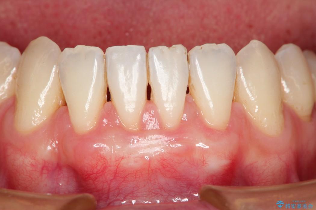 歯ぐきの再生治療 治療後画像