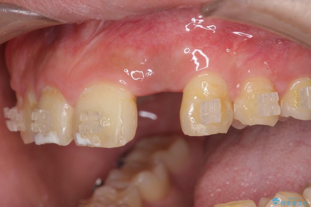 左上前歯のインプラント治療(インプラント埋入まで) アフター