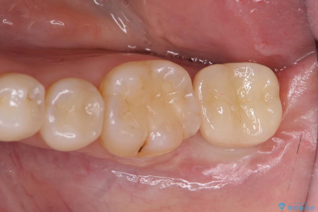 奥歯のストローマン・インプラント 治療後画像