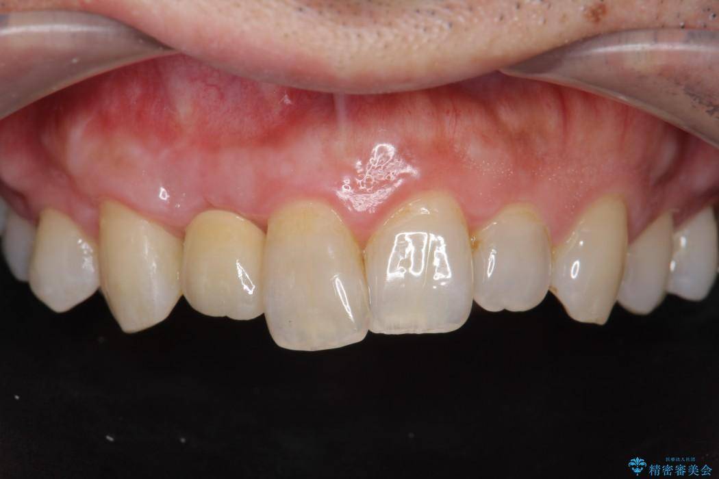 前歯のインプラント治療(セラミック治療編) 治療後画像