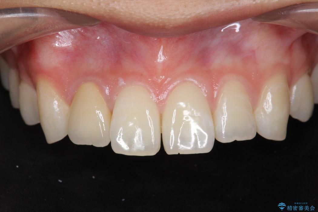 神経が死んでしまった前歯のオールセラミック治療 アフター