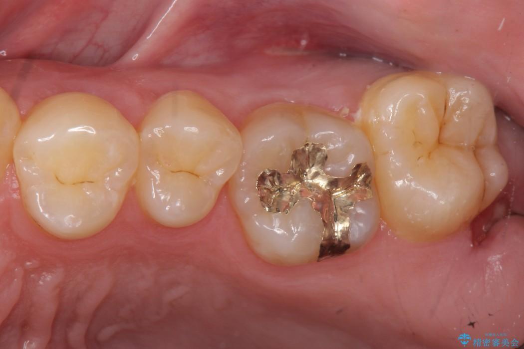 上の奥歯のゴールドインレー アフター