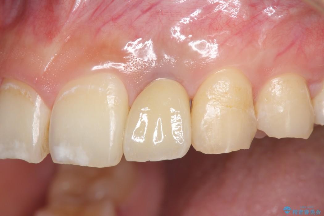 左上前歯のインプラント治療(セラミック治療編) アフター