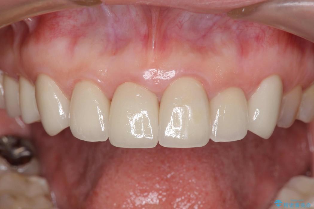 テトラサイクリンによる変色歯のセラミック治療 アフター