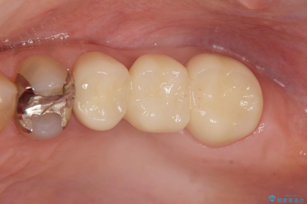 大きな穴があいた奥歯のブリッジ治療 治療後画像
