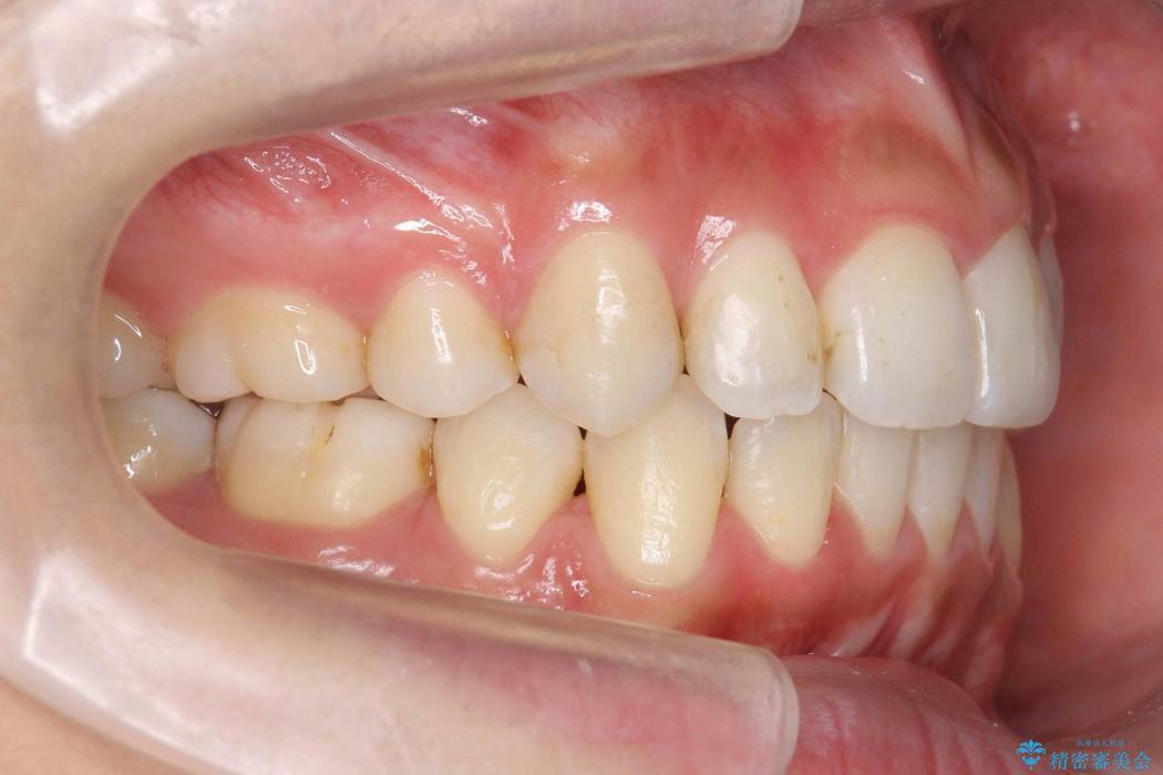出っ歯(オーバージェット10mm)のワイヤー矯正 治療後画像