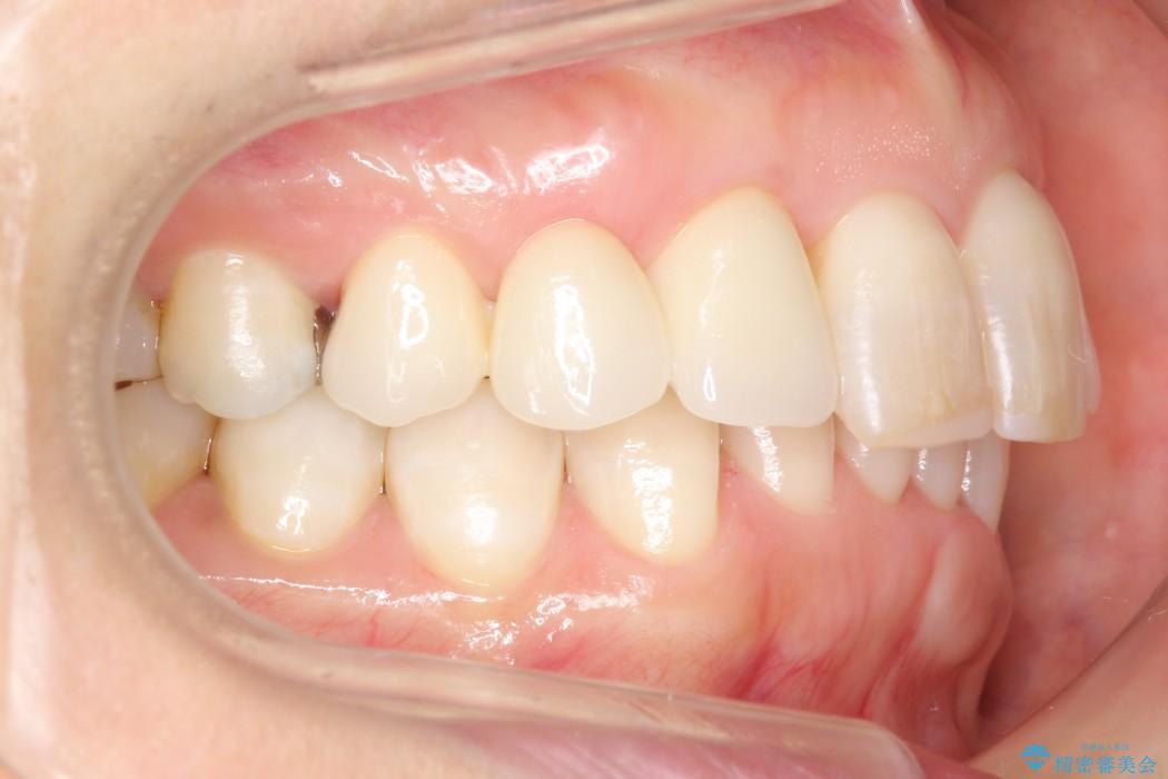 気になる前歯を矯正とセラミックの低予算治療 治療後画像