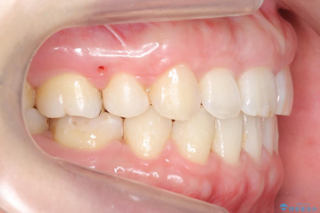 30代女性 出っ歯の再矯正治療 治療後画像