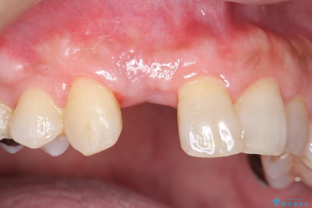 前歯のインプラント治療(インプラント埋入まで) 治療後画像