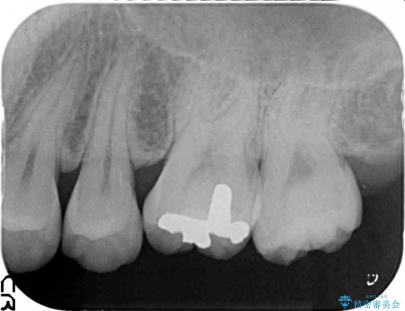 上の奥歯のゴールドインレー 治療後画像