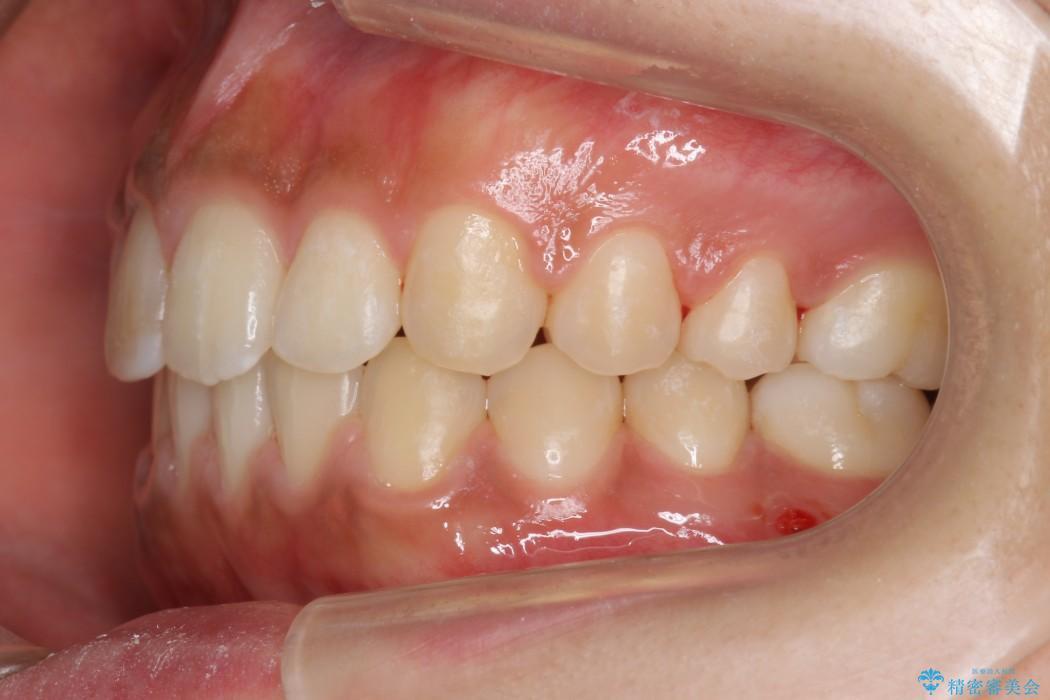 20代女性 すきっ歯の矯正歯科治療 治療後画像