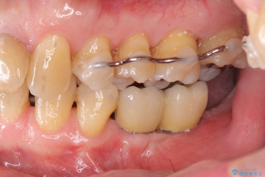 奥歯で噛みたいインプラント治療 治療後画像