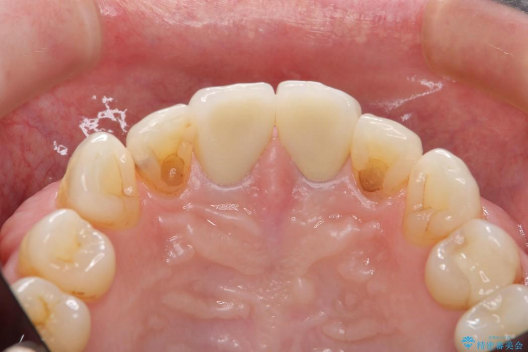 感染根管治療を伴った前歯のセラミック治療 治療後画像