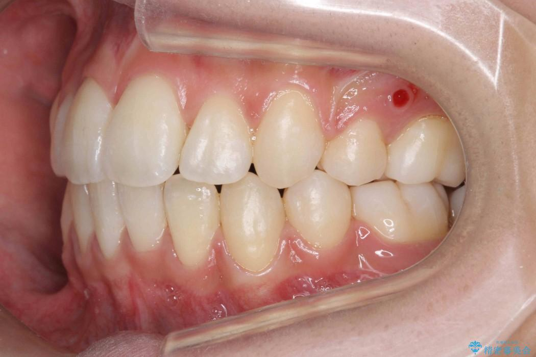 根の短い歯を抜歯 がたがたの歯並び矯正 治療後画像