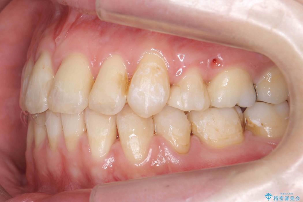 反対咬合(奥歯)のワイヤー矯正治療 治療後画像