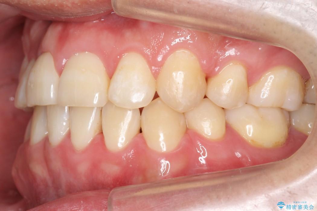 前歯のガタガタと奥歯の噛み合わせの矯正 治療後画像