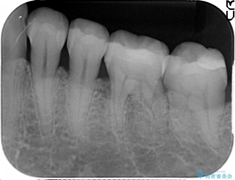 銀歯を白くするセラミックインレー 治療後画像