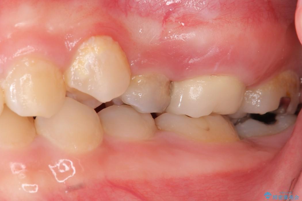 奥歯の親知らず移植 治療後画像