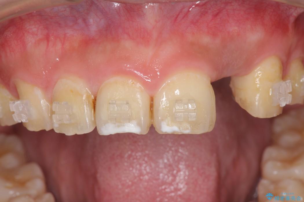 左上前歯のインプラント治療(インプラント埋入まで) 治療後画像
