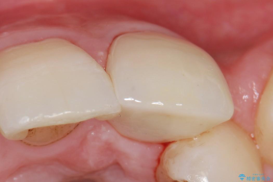 欠けた前歯のセラミック治療 治療後画像