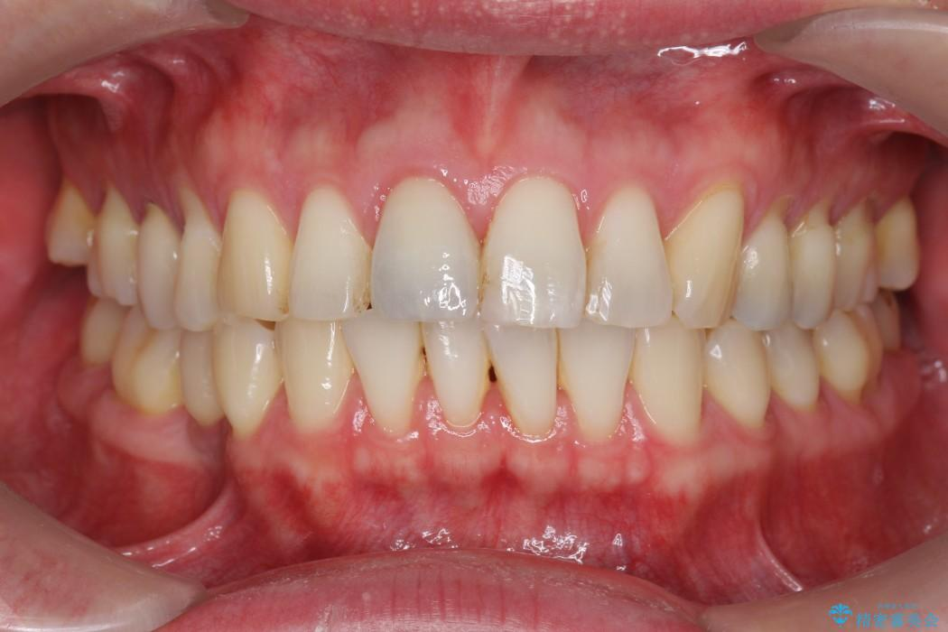 神経が無い歯のセラミック治療 治療後画像