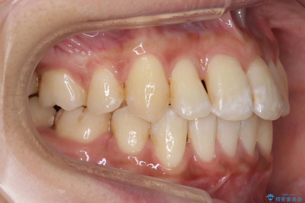 天然歯を活かす、スレ違い咬合矯正 治療後画像