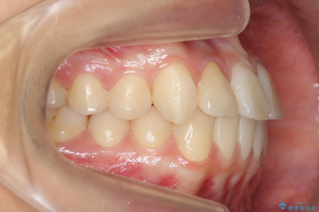 インビザラインで再矯正治療と右上前歯のセラミック治療 治療後画像