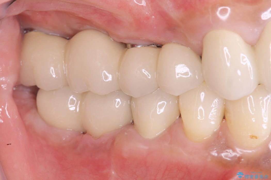 インプラントを用いた重度歯周病治療 治療後画像