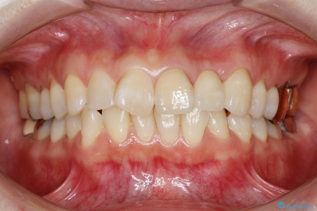 グラグラする前歯のブリッジ治療 治療後画像