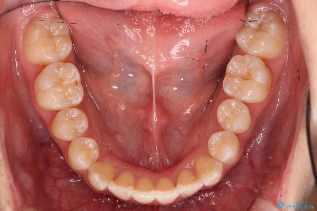前歯の叢生のインビザライン矯正 治療後画像