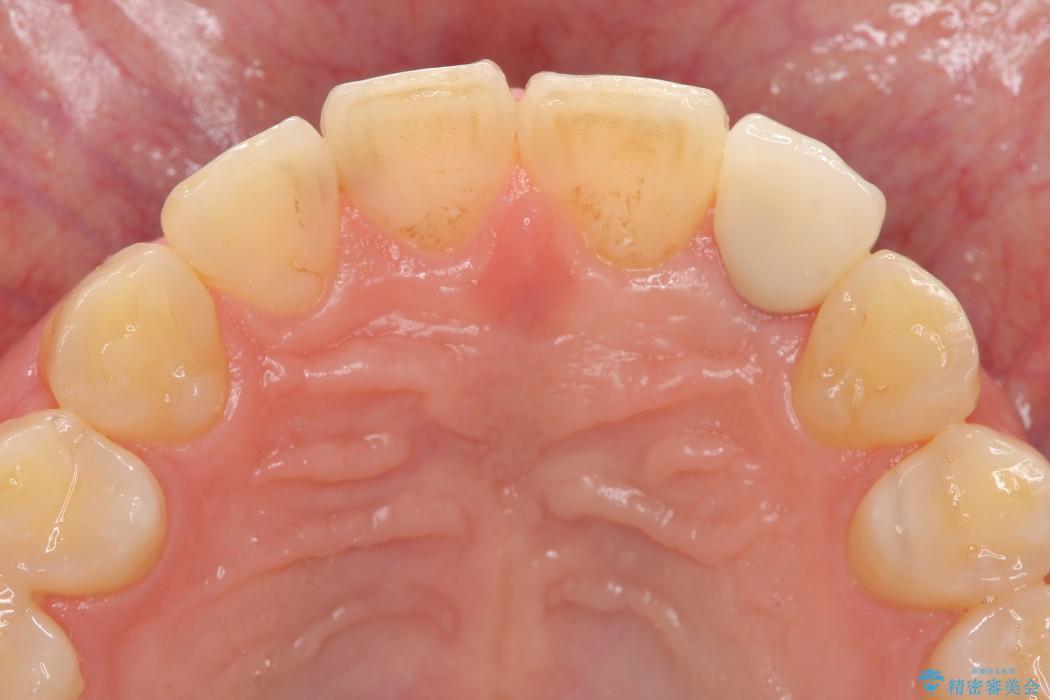 上の前歯のインプラント治療 治療後画像