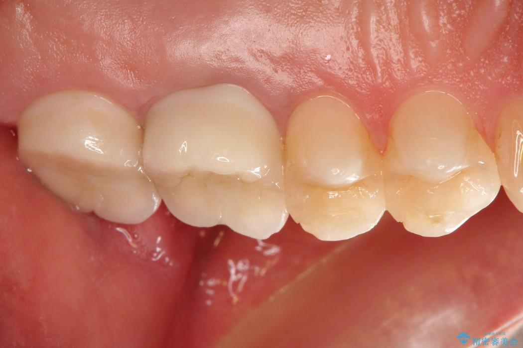 <メタルフリー>銀歯のセラミック治療 治療後画像