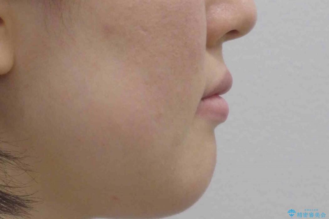 前歯のねじれと出っ歯の矯正 治療後画像
