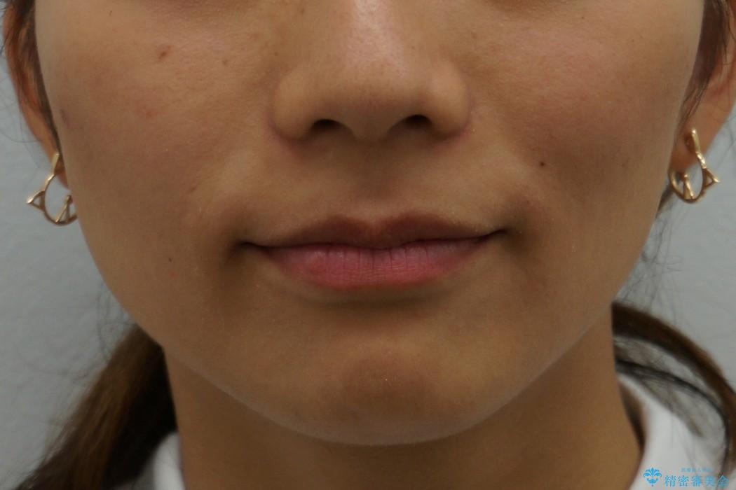 他院で治療した出っ歯の再矯正 治療後画像