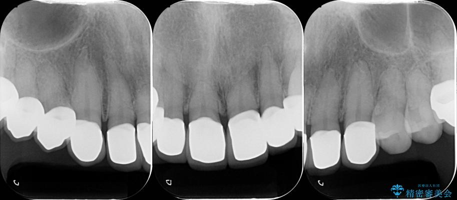 テトラサイクリンによる変色歯のセラミック治療 治療後画像