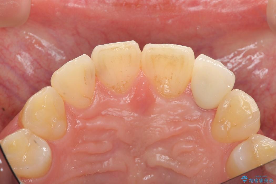 左上前歯のインプラント治療(セラミック治療編) 治療後画像