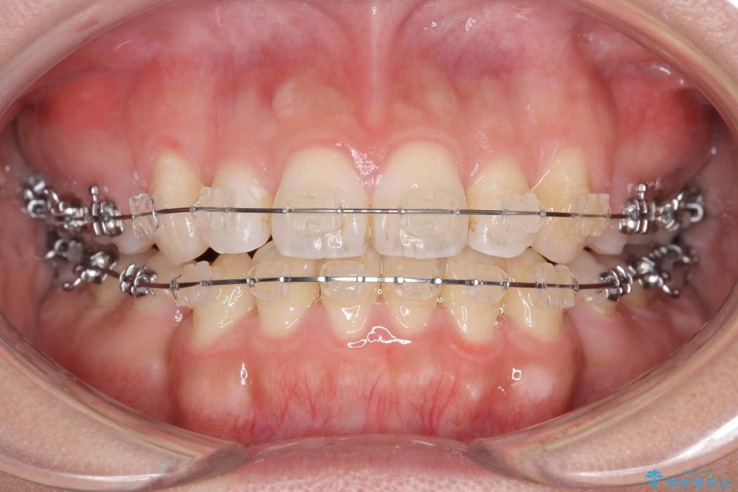 オープンバイト、八重歯の矯正 治療中画像