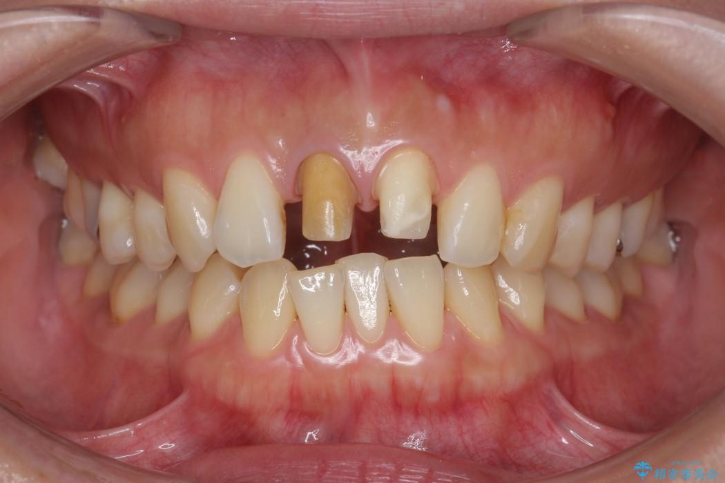 顕微鏡治療を使用した前歯の精密オールセラミック治療 治療中画像