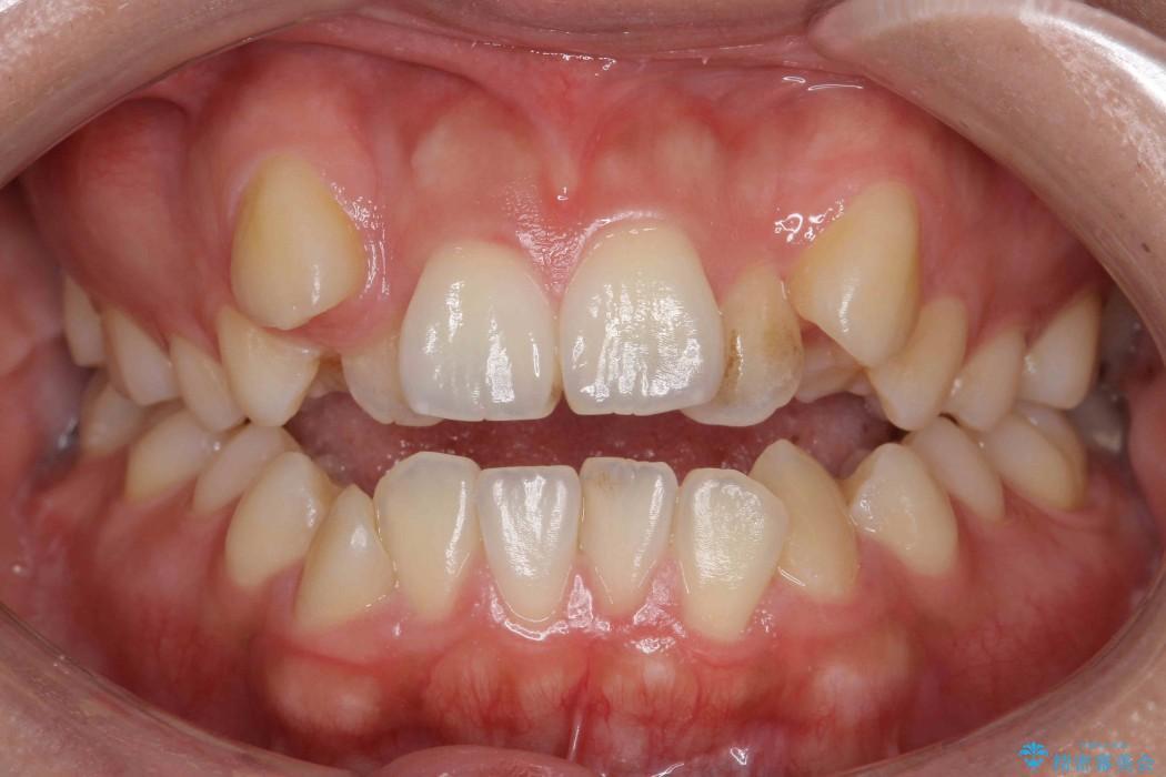 オープンバイト、八重歯の矯正 治療前画像